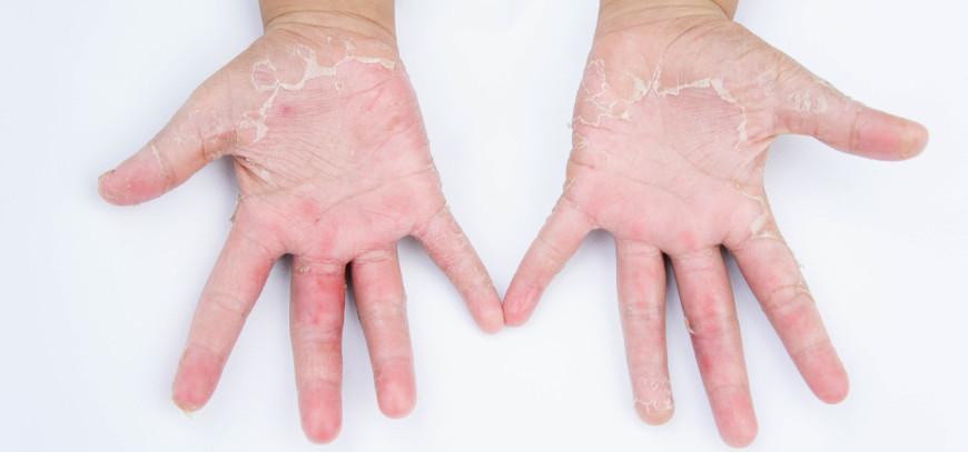 dermatitis de contacto granada